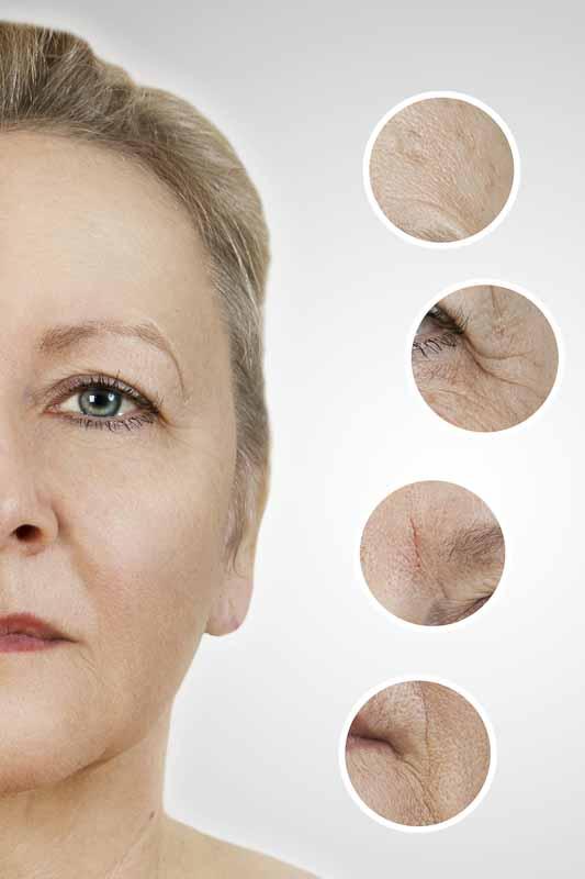 Dr. Grunert - Ästhetische Medizin - Plasmage